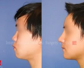 VIP Harmony face surgery
