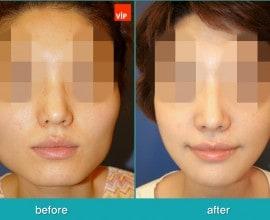 Septal Cartilage Rhinoplasty, Face Contouring Surgery, V-lin…
