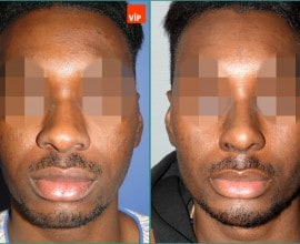 Rib cartilage rhinoplasty, Forehead endoscope, Genioplasty