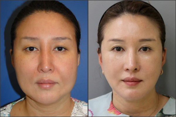 Nose Surgery, Eye Surgery, Face Lift - facelift , septal rhinoplasty