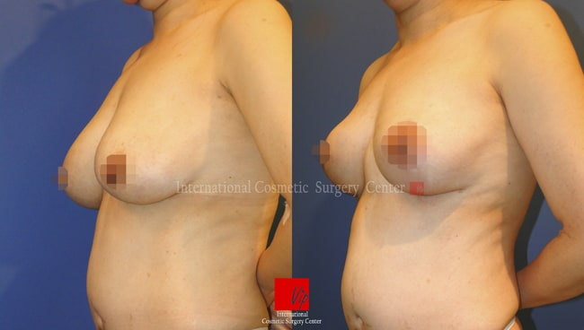 BREASTS ARE SAGGING AND HAVE NO VOLUMe