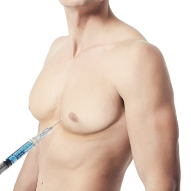 Liposuction Method of Male Breast Reduction