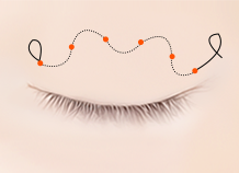 Steps for Non-incision Double Eyelid Surgery Method