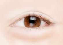 Steps for Lower Eyelid Surgery Method