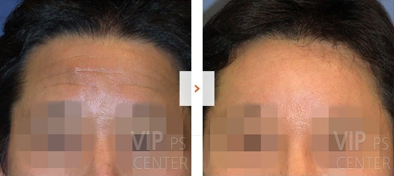 Forehead lift before and after