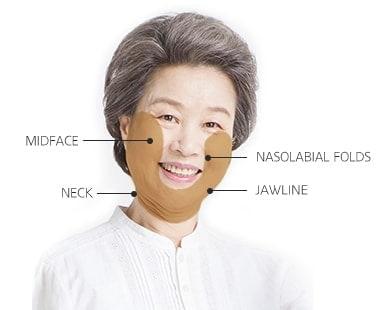 High-SMAS Facelift surgery area