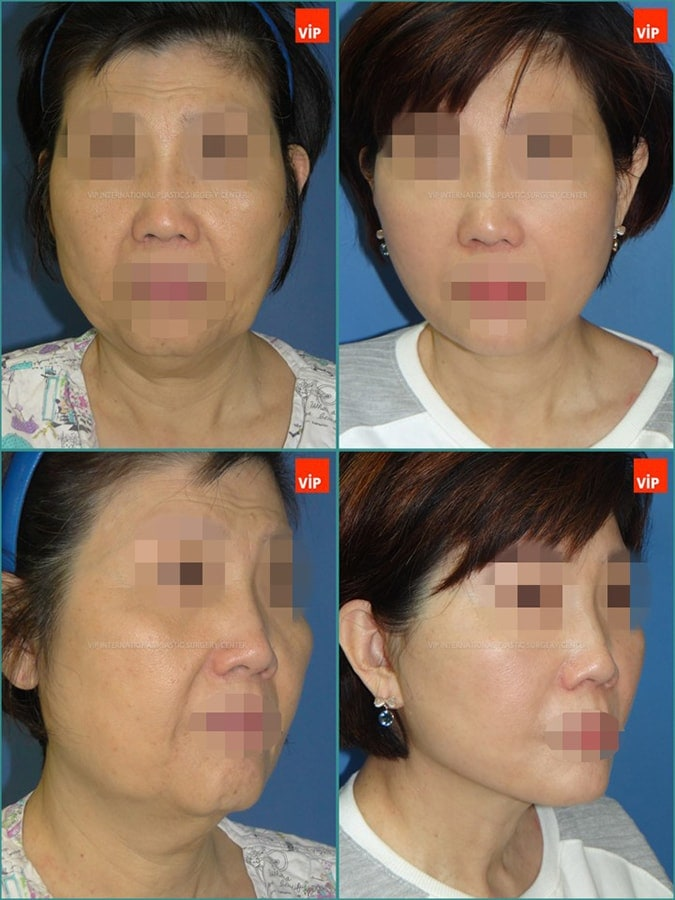 Anti aging surgeries -Case Study