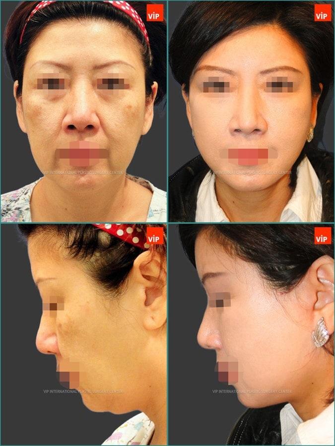 Anti aging surgeries combination