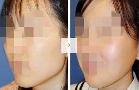 Cheekbone Reduction Surgery - Before and After