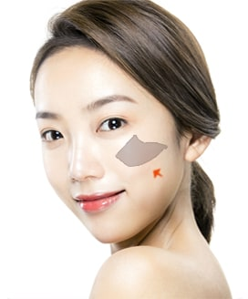 Cheekbone Reduction Surgery Method – Step 4