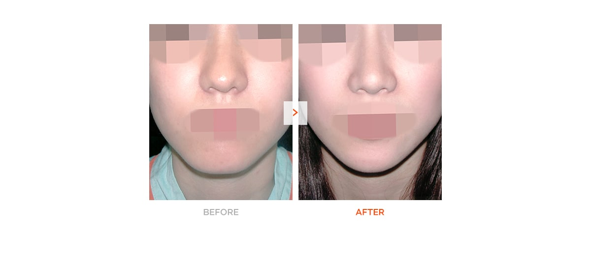 Chin Surgery – Before and After