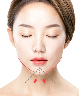Chin Surgery Method - T-Cut Chin Surgery – Step 2