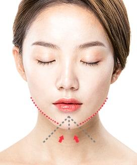 Chin Surgery Method - T-Cut Chin Surgery – Step 2
