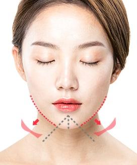 Chin Surgery Method - T-Cut Chin Surgery – Step 3