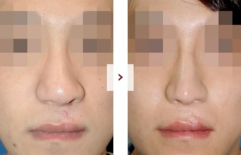 Cleft Lip Rhinoplasty Surgery Before and After