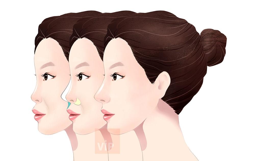 Harmony Rhinoplasty and mid face augmentation
