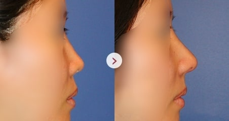 Low nose before and after