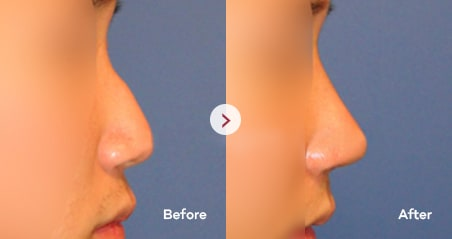 Hump Nose before and after