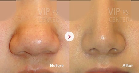 Bulbous Nose before and after