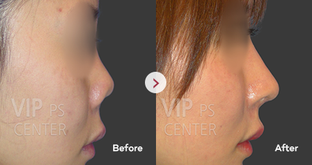 Contracted/Upturned Nose before and after