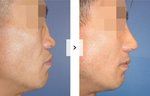 Perbaikan Rhinoplasty Sebelum & Sesudah