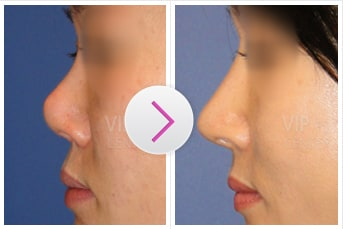 Revision Rhinoplasty Before and After(Upturned Nose)