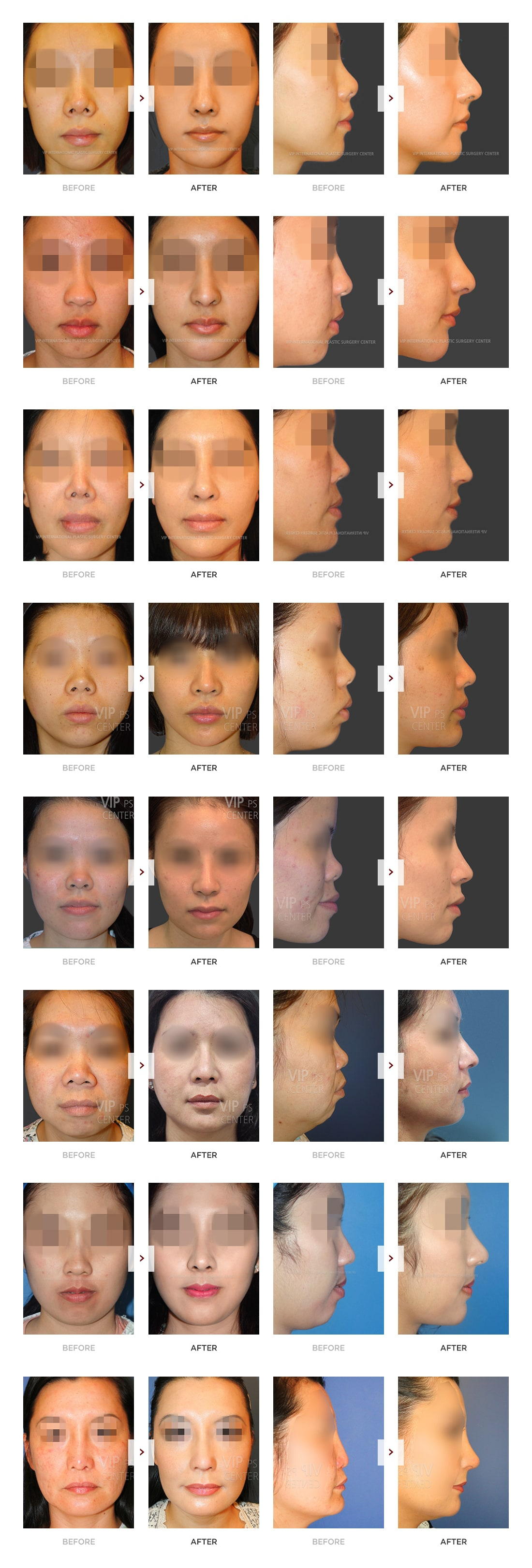 Rib Cartilage Rhinoplasty Before and After
