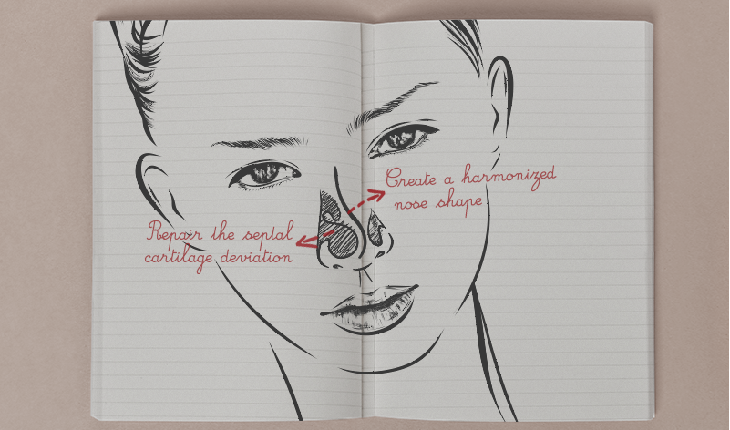Difference between the Traditional ENT Surgery and VIP Septal Deviation Rhinoplasty