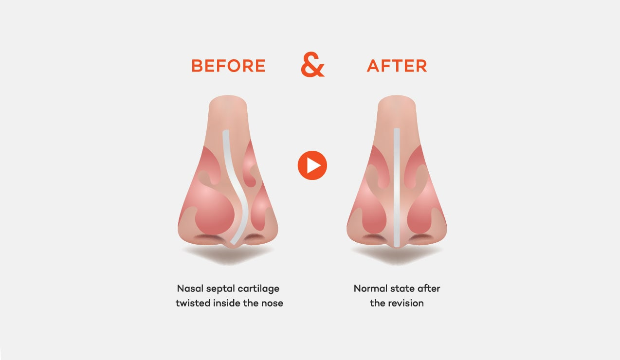 Revision Rhinoplasty of Nasal Septal Cartilage deviation case